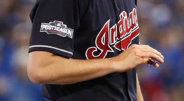 TBS Shows Horrific Shot Of Trevor Bauer's Mangled Pinky