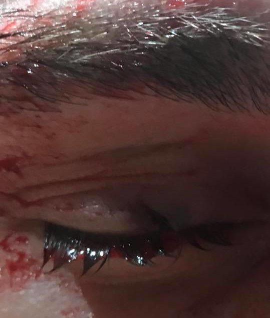 UFC Johnny Case Eye Injury