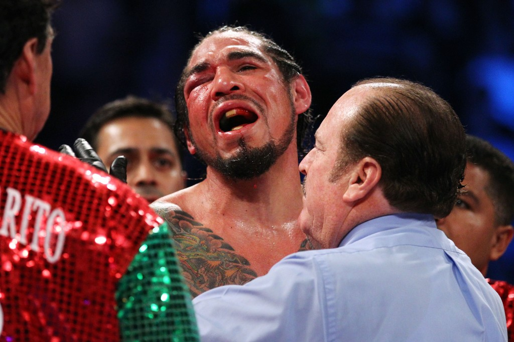 Margarito protests despite his gruesome eye injury  (Photo by Al Bello/Getty Images)