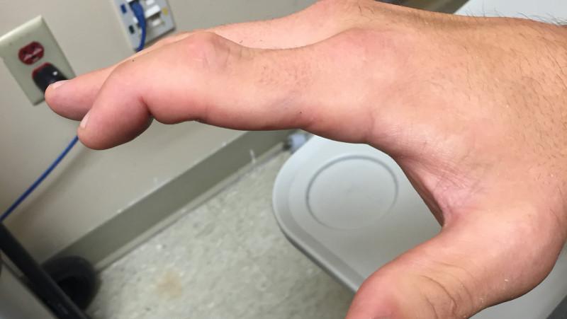 Travis Browne Broken Finger