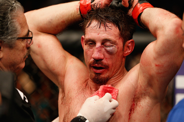 LAS VEGAS, NV - SEPTEMBER 27:  Tim Kennedy recovers after his loss from Yoel Romero in their middleweight fight during the UFC 178 event inside the MGM Grand Garden Arena on September 27, 2014 in Las Vegas, Nevada.  (Photo by Josh Hedges/Zuffa LLC/Zuffa LLC via Getty Images)