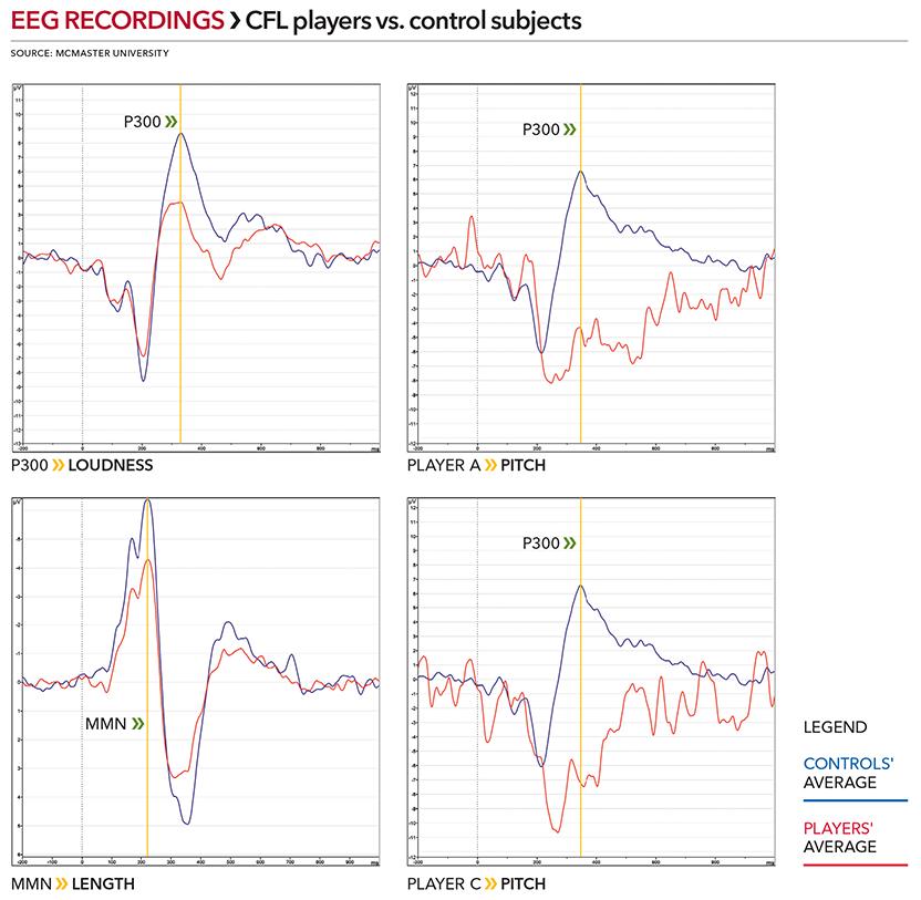 Hamilton study EEG recordings.