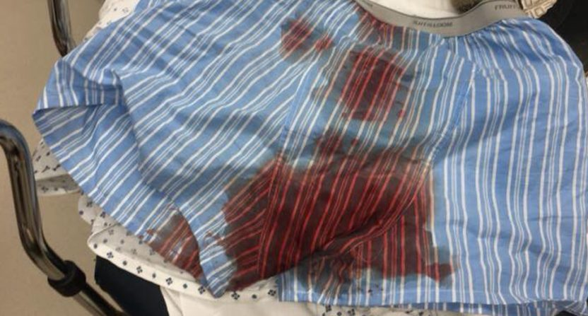 Bryce Mitchell posted a photo of his blood-soaked underwear after a power drill accident.