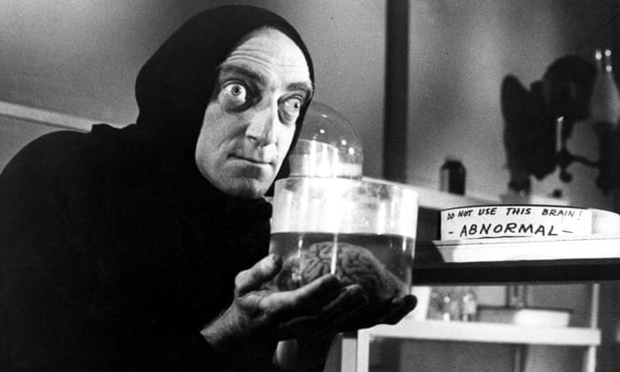 An abnormal brain from Young Frankenstein.